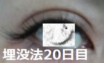 20days.jpg