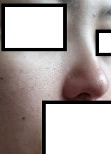 鼻 プチ整形