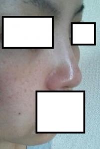鼻 プチ整形 ブログ