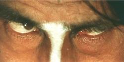 ある男の目
