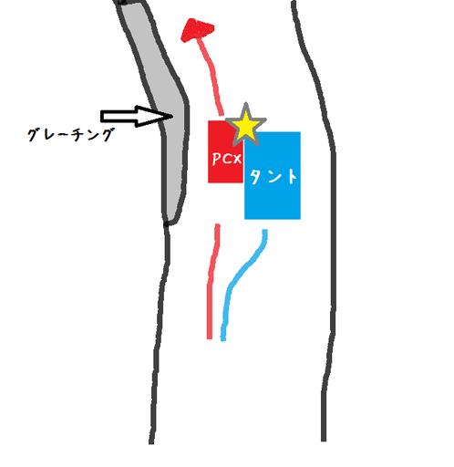 jiko3.png