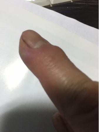 指の腫れ1