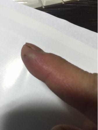 指の腫れ2