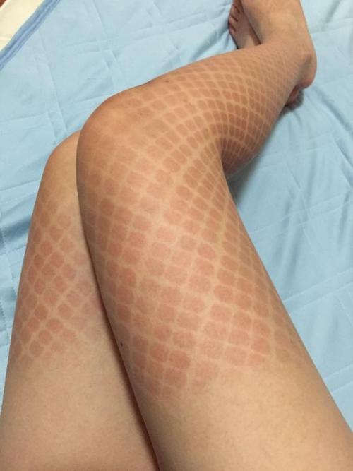 コミケで網タイツを履いてコスプレした女性 麻呂あやね、日焼け跡が大変なことに