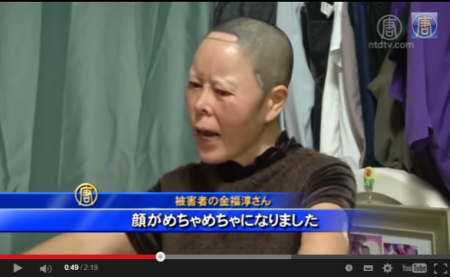 【動画】美容整形王国の韓国 被害者が後を絶たず [嫌韓ちゃんねる ~日本の未来のために~ 記事No2274