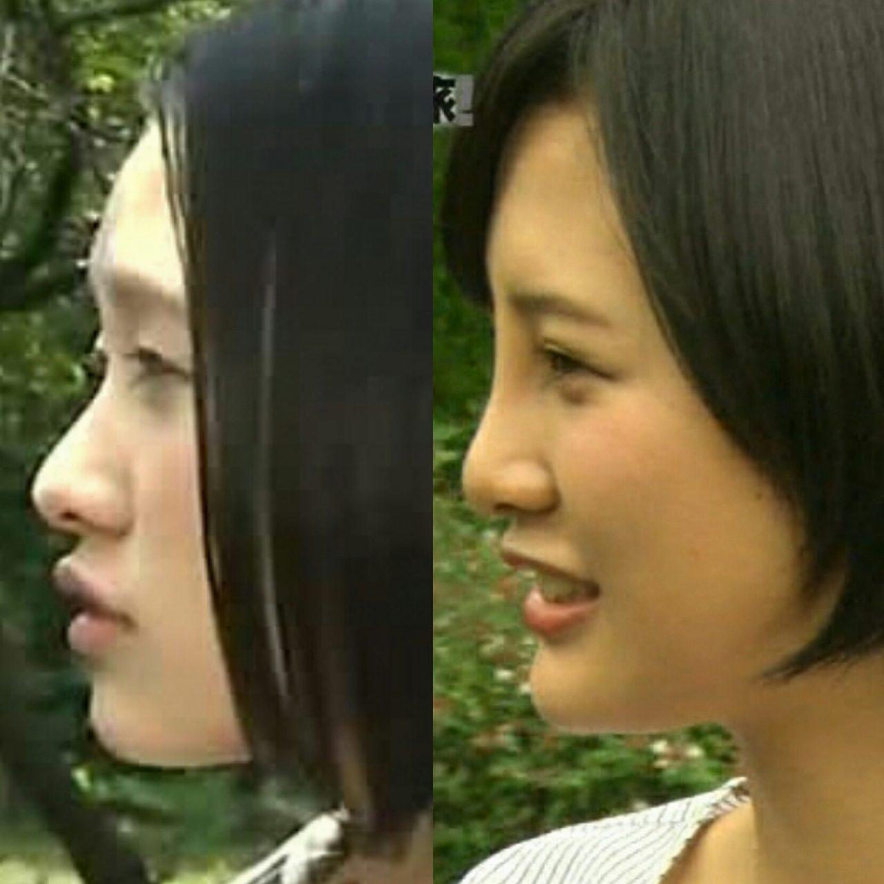 鼻プロテ整形前後の兒玉遥、比較画像