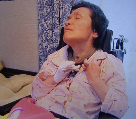 サリンによる後遺症に今も苦しむ浅川さん