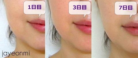 チョンダム_品美容クリニック_脂肪溶解注射_経過(1)