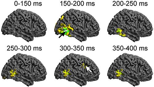 表情の変化に1秒以内で連鎖反応する脳組織