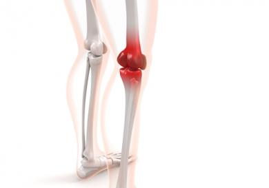 膝痛201534