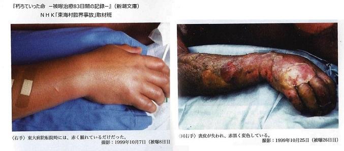 JCO臨界事故1