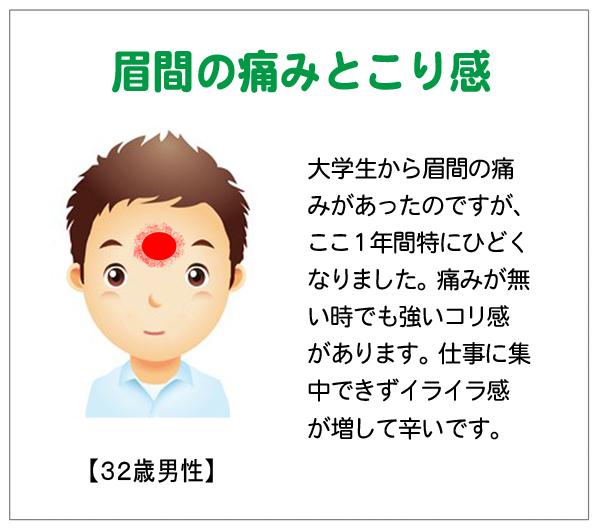 眉間15-03-16