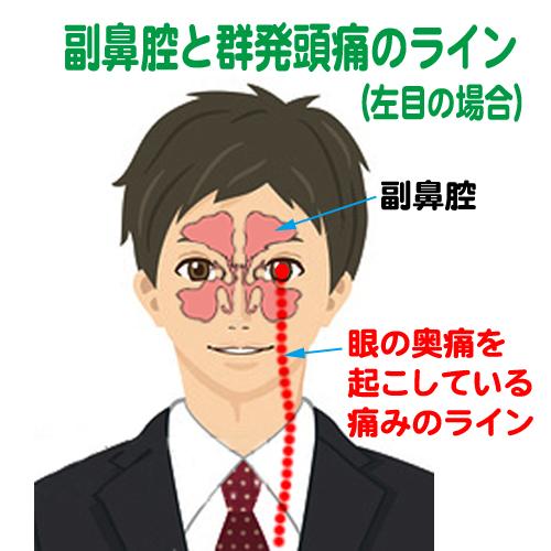 副鼻腔と群発