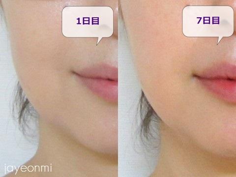 チョンダム_品美容クリニック_脂肪溶解注射_経過(2)